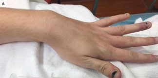 EXCLUSIVE: US Woman's blood turns navy blue after taking pain releif medicines...Here's why?