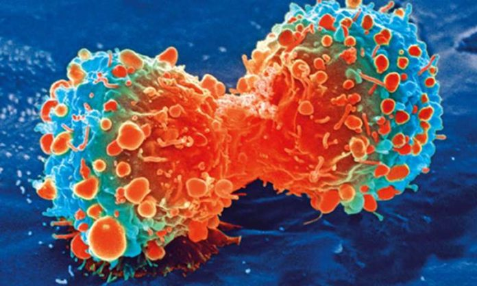 Childhood brain cancer promises to be treated by Leukemia drug