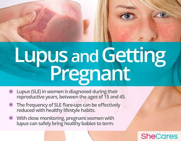 New Developing therapeutic strategies for pregnant women suffering from lupus