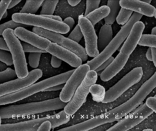E. coli outbreak in Norway 4 HUS cases caused