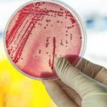 New way to test for drug resistant infections