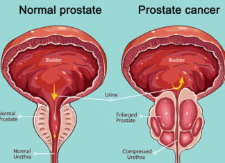 New therapy- Prostate Cancer Treatment from two months to a week, Here's the Theory