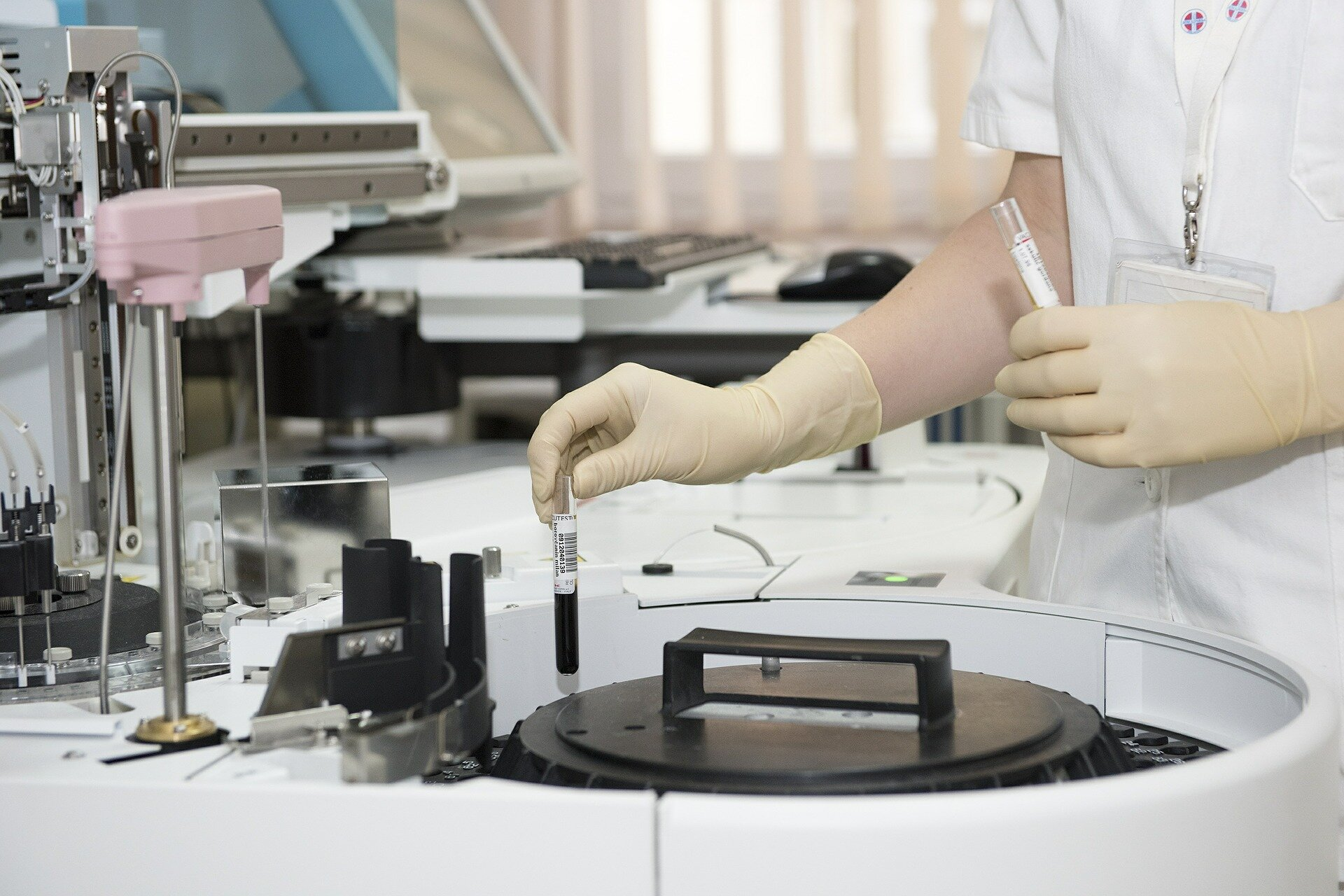 New cheap method to identify aggressive tumours by Researchers