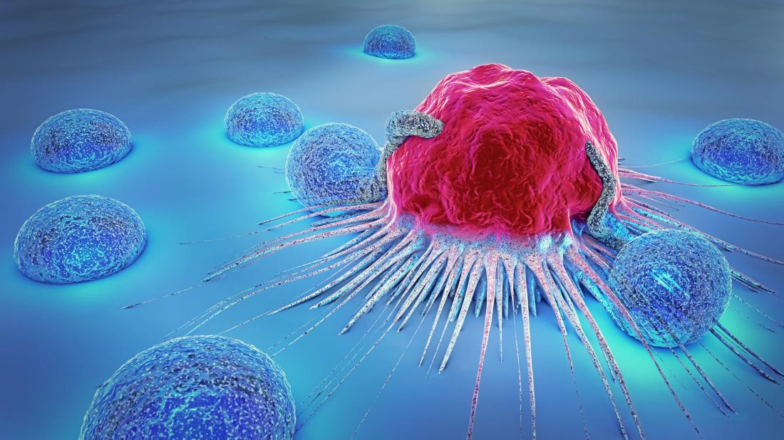 New vaccine helps kill cancer cells in patient with breast cancer: Details inside