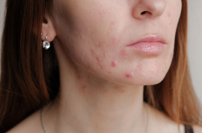 Acne You Have
