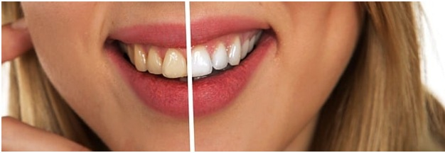 How To Treat Tetracycline Discoloration